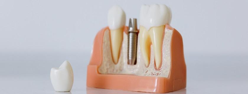 implantes dentales en Pontevedra dentista Mareque