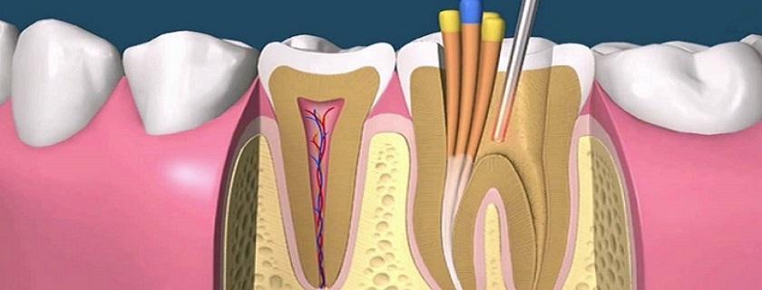 Endodoncia en Pontevedra clinica mareque