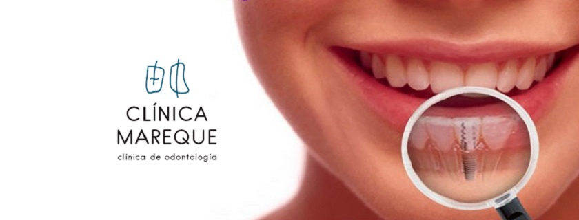 Implantes dentales Pontevedra