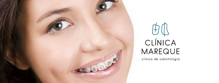 ortodoncia pontevedra clínica mareque