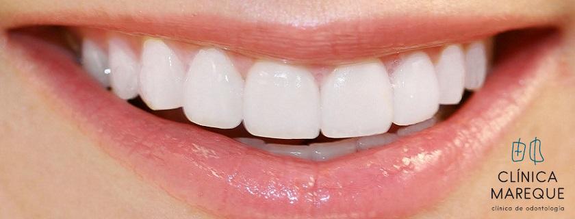 estética dental en pontevedra
