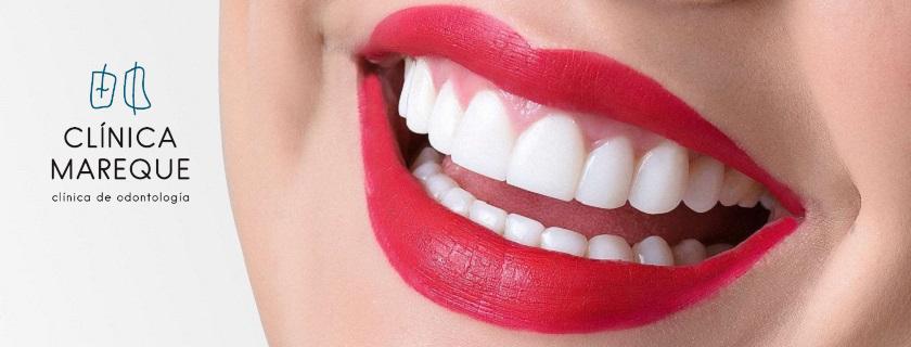 blanqueamiento dental pontevedra clinica mareque