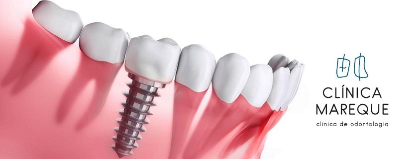 implantes dentales en pontevedra clinica mareque