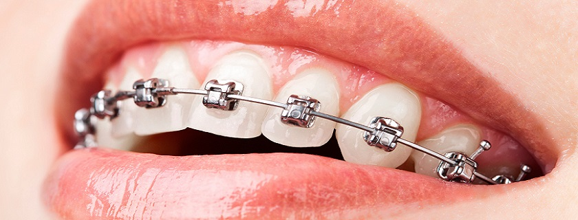 ortodoncia en pontevedra clínica doctora mareque