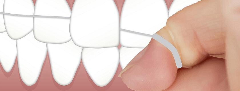 limpieza dental Pontevedra Mareque