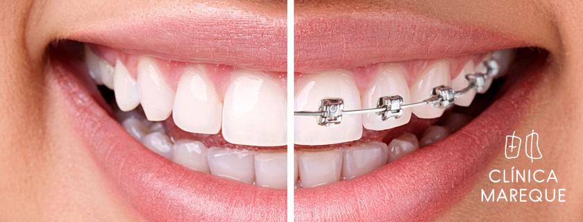 ortodoncia en pontevedra
