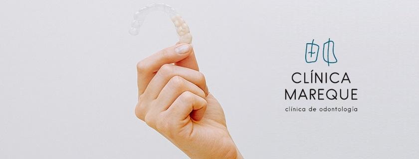 invisaling ortodoncia invisible