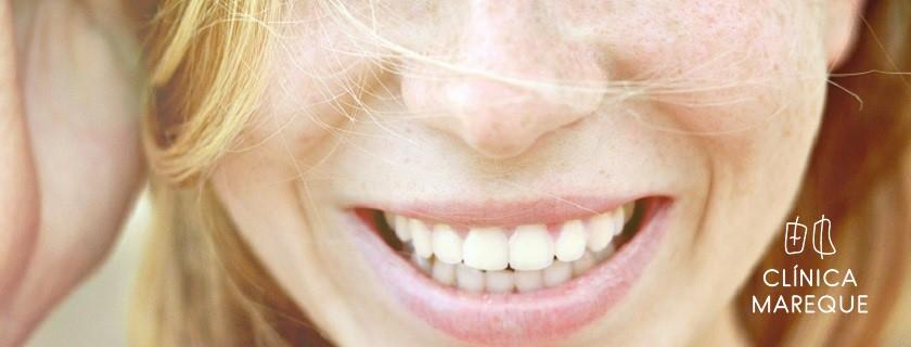 implantes dentales dentista Pontevedra