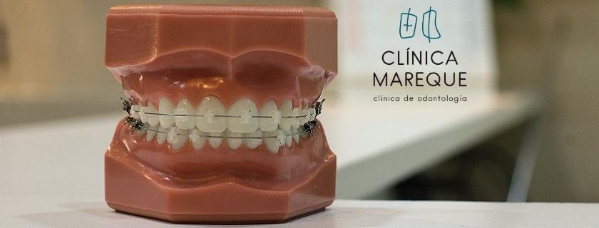 ortodoncia en Pontevedra Mareque odontología