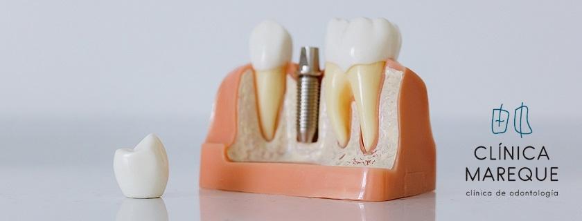 implante dental Pontevedra